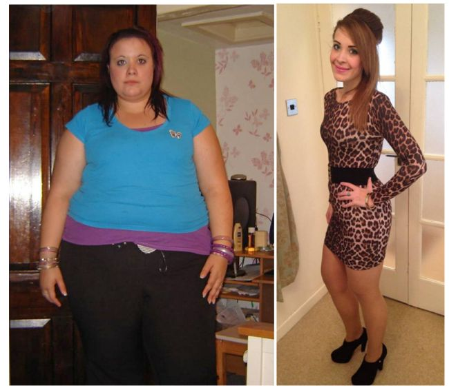 Obese teen credits surgery for weight loss -