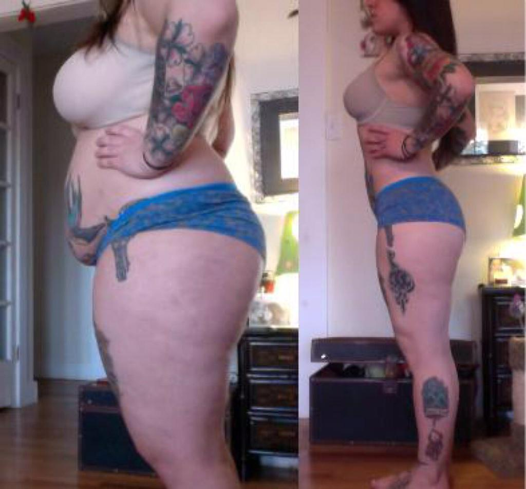 Fat Legs Before And After Weight Loss - Weight Loss & Diet Plans
