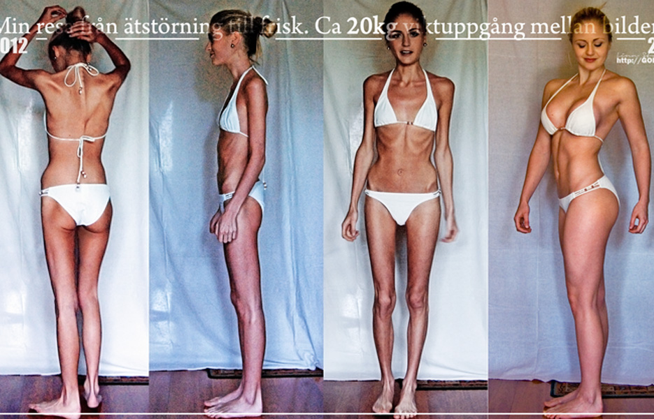 Linn Stromberg Anorexia Before And After