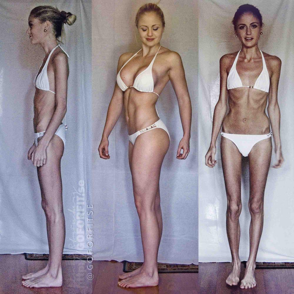 Поможет ли булимия похудеть