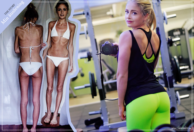 Linn Strömberg's Incredible Anorexic To Fit 42lb