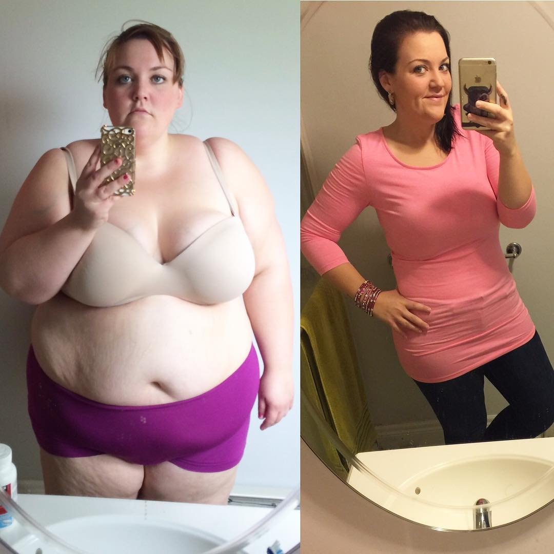 Angela Maedel Weight Loss Specialist